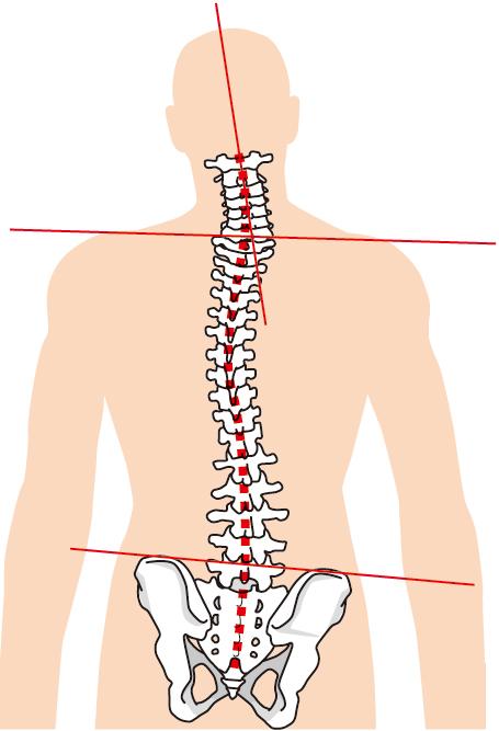 血流は背骨・骨盤の歪み、内臓の疲労が原因です。